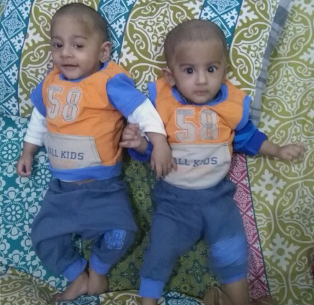 IVF / ICSI Positive Twins After 5 Years of Marriage